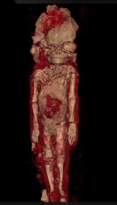 胎児のミイラ2